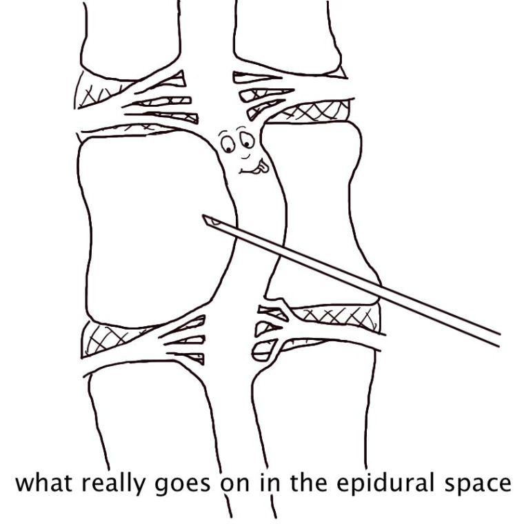 epiduralspace